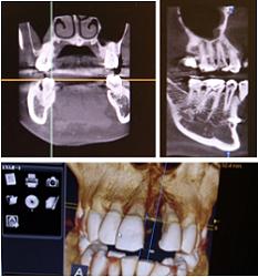 歯科用CT外来