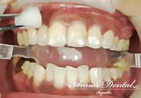 歯茎の黒ずんでいる部分を消毒し、表面を乾燥させます