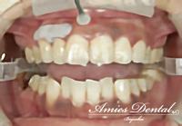 >歯茎の黒ずんでいる部分に薬剤(ピーリング剤)を塗ります。白くなってきたら拭き取り、表面麻酔薬を洗い流します。