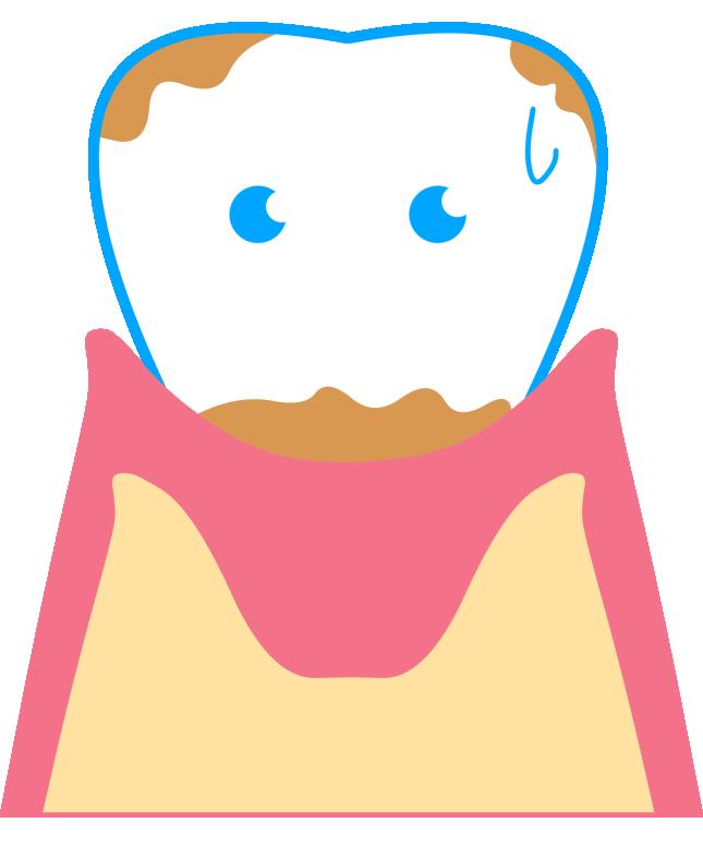 歯石ってそもそも何?|千葉のアミーズ歯科クリニック
