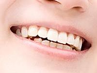 歯科用顕微鏡を使用するメリット