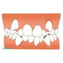 叢生(乱杭歯、凸凹の歯並び