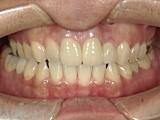 前歯の離開の症例