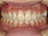 前歯が突出し、歯茎の色、歯の色が気になって来院された症例