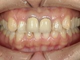 前歯の突出感と色が気になるという患者様