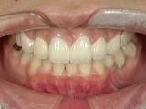 仮歯がすり減り噛み合わせが崩れてしまった患者様