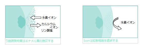 iconによる虫歯治療