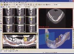 シンプラントシステム導入CT