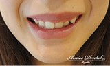 """笑うと歯茎が見えてしまう""""グッキー""""な方におすすめの治療法1"""