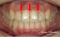 歯軸を修正していきます。
