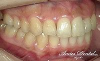 ケースリファイメント①臼歯部の開咬