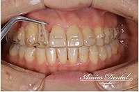 ケースリファイメント②歯の挺出不足によるエアースペースの発生