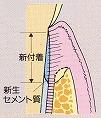 GTR法(歯周組織再生誘導法)