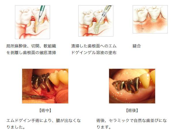 (B)エムドゲイン法(歯周組織再生誘導材料:EMDOGAIN)