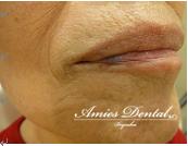 唇のできものはアミーズ歯科クリニックで治療できます