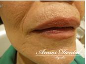 唇のできものの治療ならアミーズ歯科クリニックへ