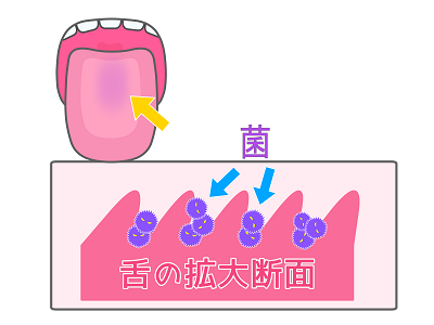 舌苔の放置