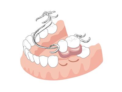 入れ歯の不適合
