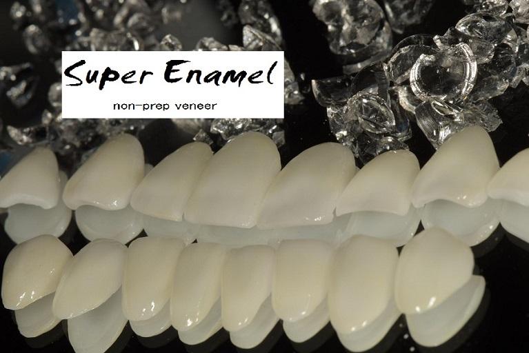 スーパーエナメルの5つの特徴
