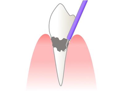 プラーク・歯石の放置